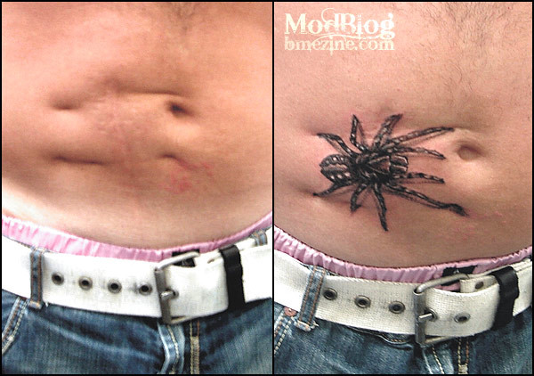 spider-tattoo-on-scar-normal.jpg